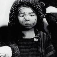 """Nazım Hikmet'in Hiroşima ile ilgili şiiri """"Kız çocuğu"""""""